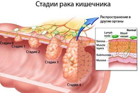 Рак ануса