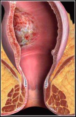 Повреждение прямой кишки при анальном сексе